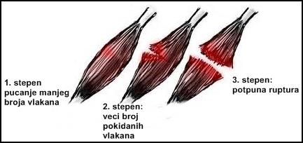 Istegnuće butnog mišića Kvadricepsa