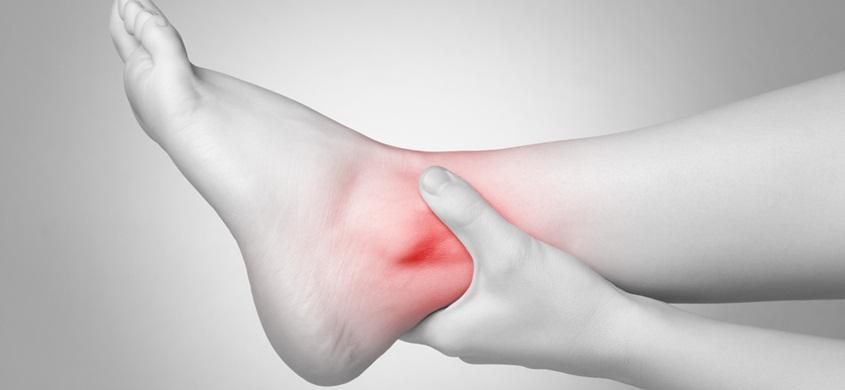 Artritis skočnog zgloba