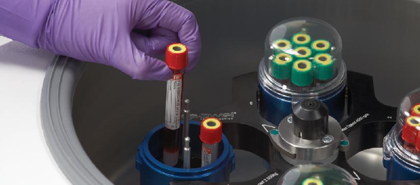 PRP terapija – Plazma bogata trombocitima