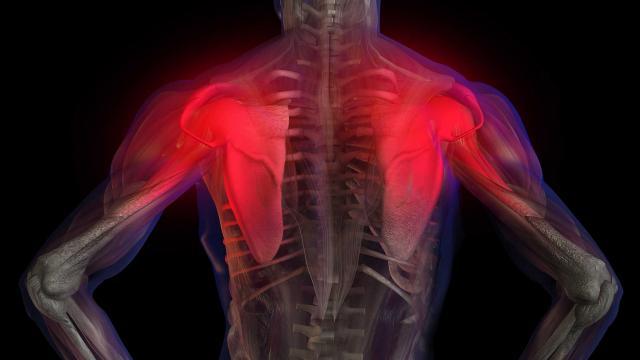 Bol u leđima – Fibromijalgija