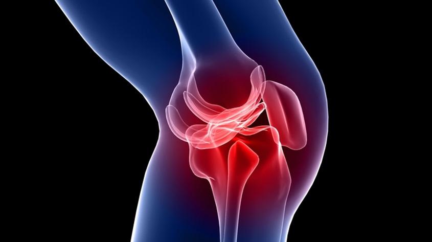 Bol u kolenu – prednji ukršteni ligamenti
