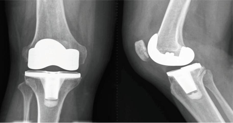 Ortopedija i rehabilitacija
